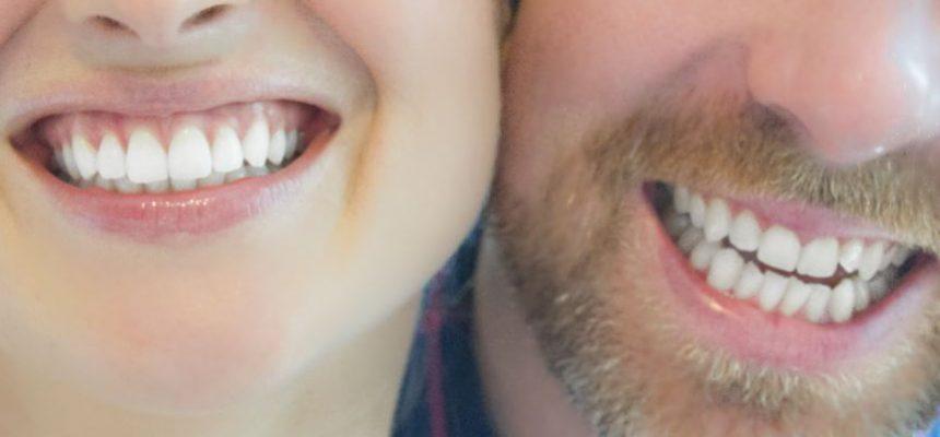 Hvite tenner med tannbleking